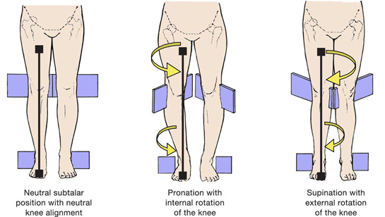 knee fig 3 Ankle Pronation Surgery