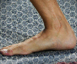Bare Your Sole: Getting In Step with Barefoot Fitness